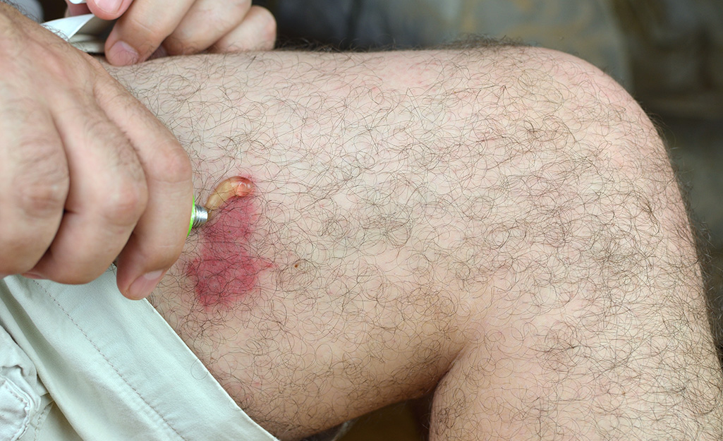 A person applies a topical ointment to redness on his leg.